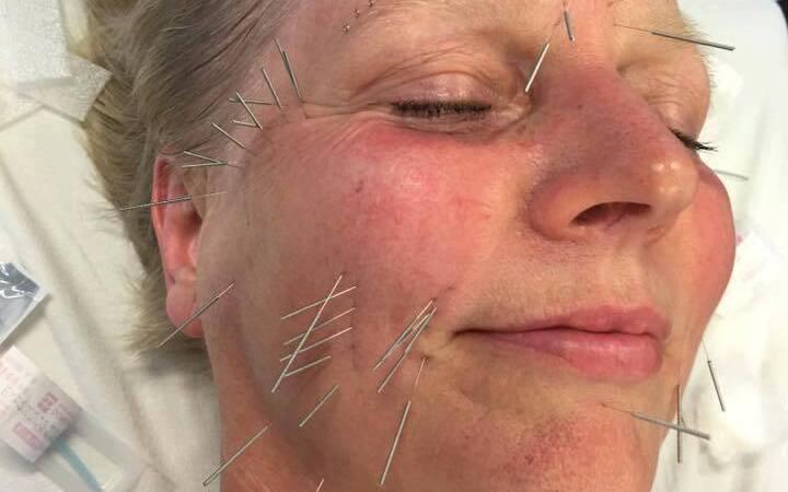 Kosmetisk behandling med Akupunktur og Kinesisk Medicin